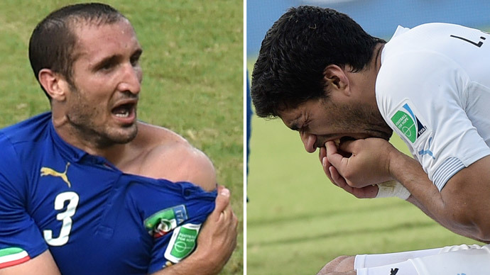 This combo of 2 photos shows Italy's defender Giorgio Chiellini (L) showing an apparent bitemark and Uruguay forward Luis Suarez (R) holding his teeth after the incident during the Group D football match between Italy and Uruguay at the Dunas Arena in Natal during the 2014 FIFA World Cup on June 24, 2014. (AFP Photo / Yasuyoshi Chiba / Daniel Garcia)