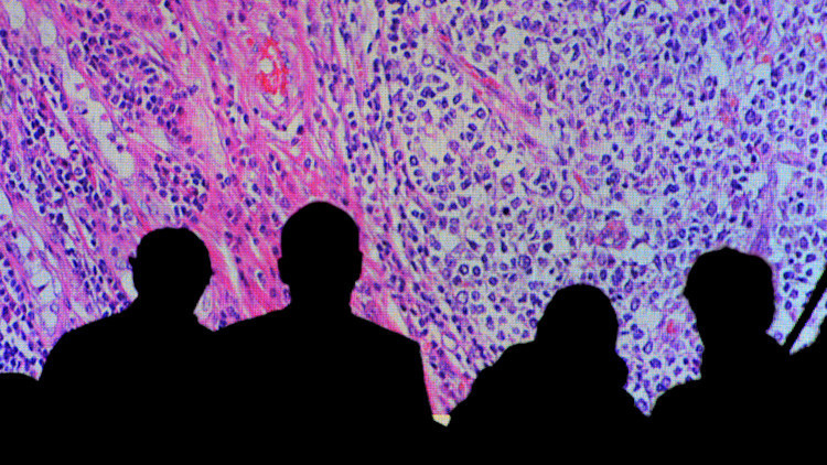 Descubren nuevas pistas sobre el desarrollo del cáncer