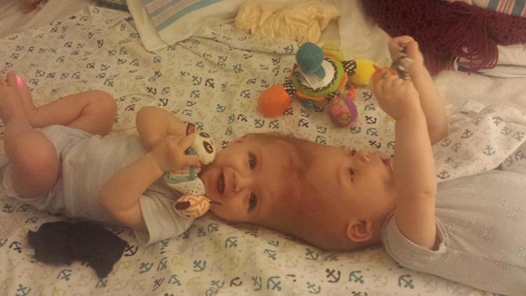 Foto: Separan a gemelos siameses unidos por la cabeza tras una operación de 27 horas