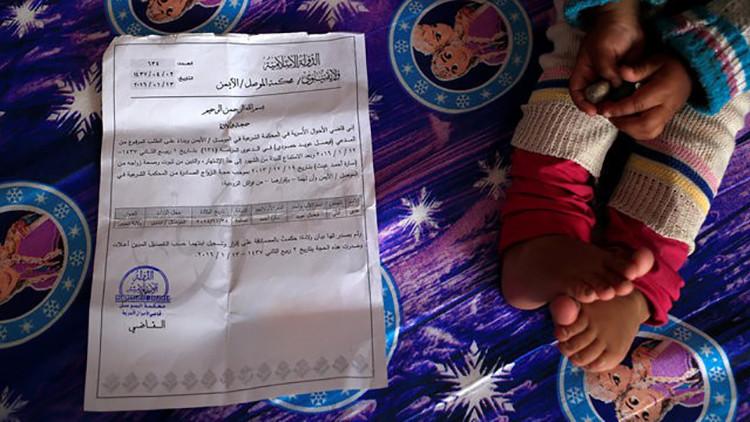 FUERTES IMÁGENES: Los niños 'esqueléticos' de Mosul reflejan la devastadora guerra de Irak