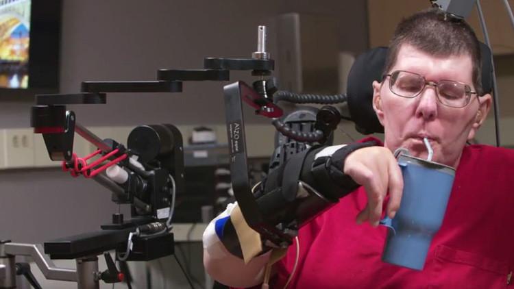 El poder de la mente: un hombre con parálisis usa sus pensamientos para mover brazos y manos (Video)