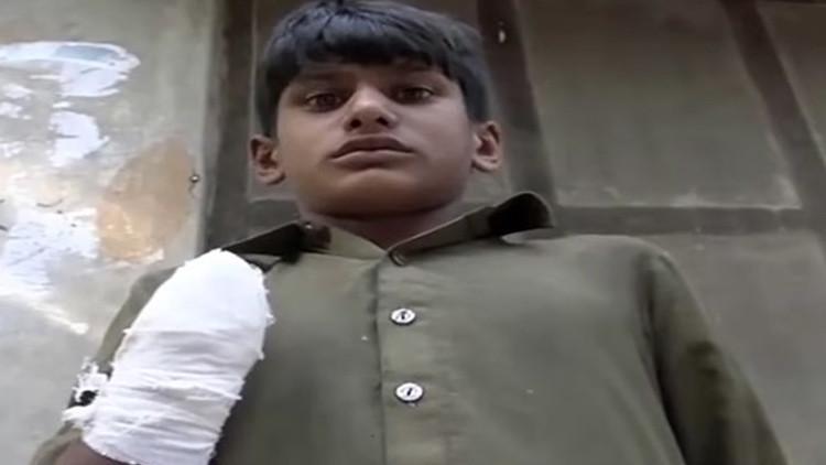Cercenan la mano a un adolescente pakistaní por exigir que le pagaran su salario (VIDEO)