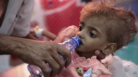 Un padre da agua a su hija desnutrida en un centro de alimentación de un hospital en Al Hudayda, Yemen, el 27 de septiembre de 2018.