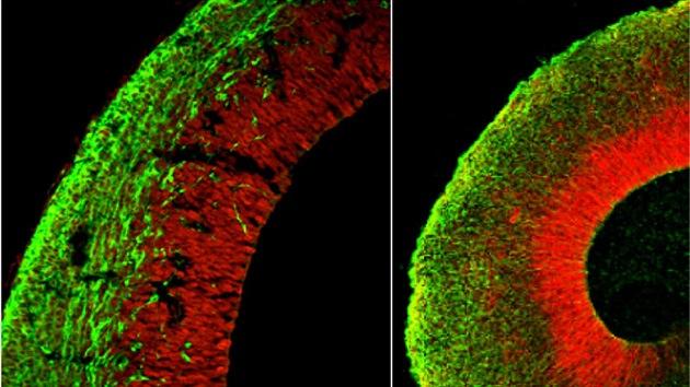 Nace el primer cerebro en laboratorio