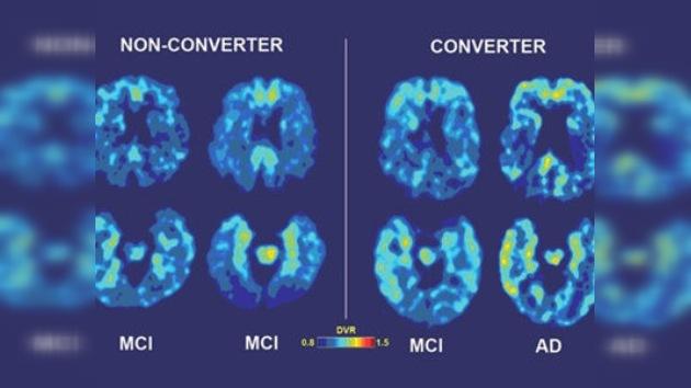 Desarrollan nueva tecnología para predecir el Alzheimer