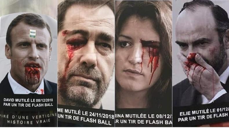 Frankreich: Schockkampagne macht auf Polizeigewalt gegen Gelbwesten aufmerksam
