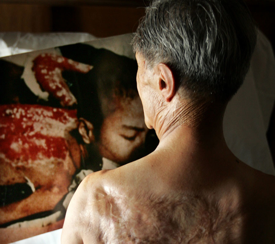 Atomic bomb victim Sumiteru Taniguchi shows his back which was severely burnt by the atomic bomb next to a photo of him taken about half a year after the incident at his home in Nagasaki © Issei Kato