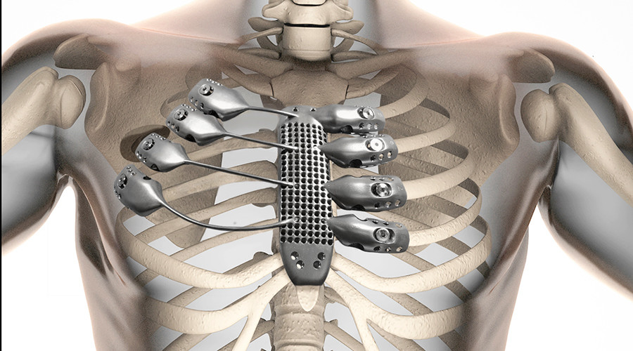 Patient gets 3D-printed metal ribs for the first time ever
