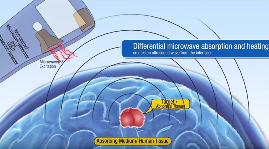 Stanford scientists test ultrasound & microwave 'tricorder' to detect tumors remotely