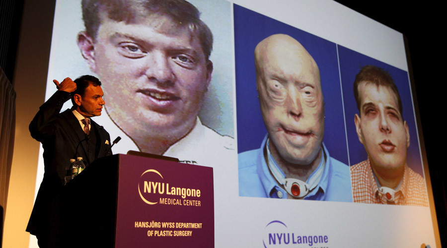 Face-transplant breakthroughs - Incredible images from a decade saving face