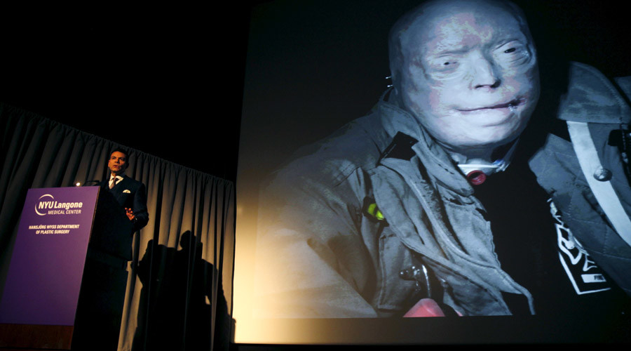 Dr. Eduardo D. Rodriguez shows a picture of transplant patient Patrick Hardison © Mike Segar