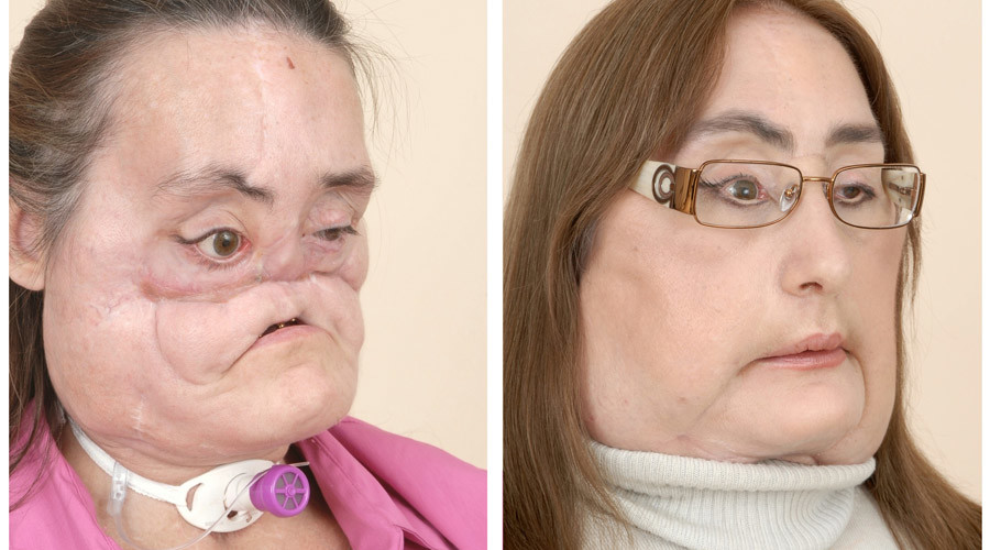 Connie Culp before and after her face-transplant © Cleveland Clinic