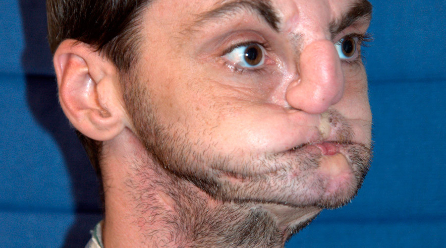 Richard Norris before his face transplant surgery © University of Maryland Medical Center
