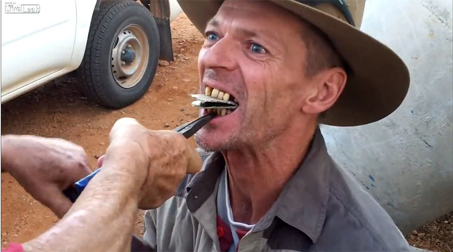 Flamin' hell! Outback 'dentist' pulls teeth old-fashioned way