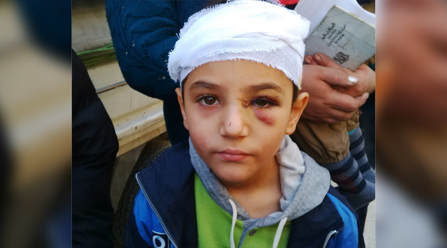 Zein Abudllah, 8, injured by shrapnel to his face in the December 12 terorist car bombing.  © Eva Bartlett
