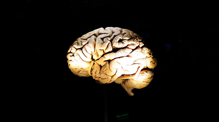 File photo of a human brain. © Emmanuel Dunand