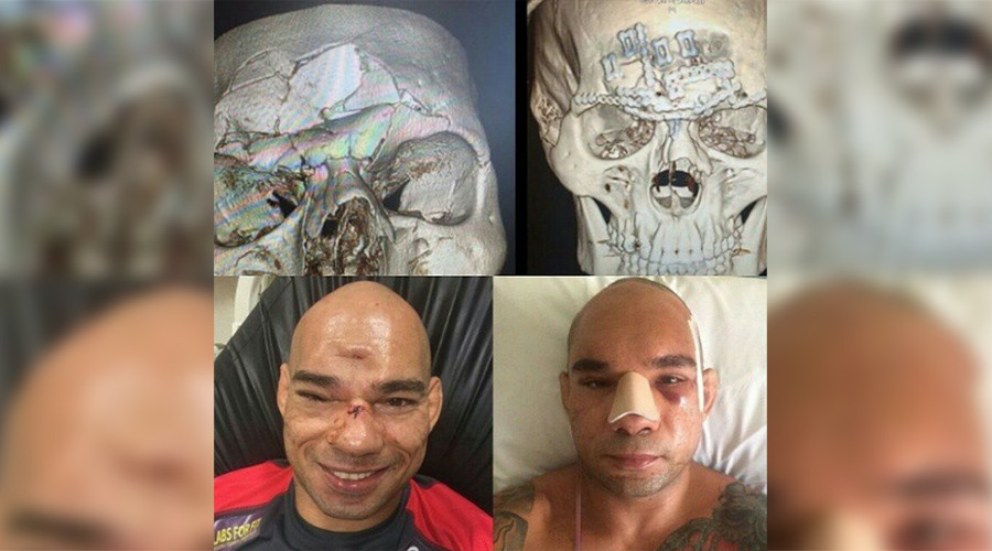 """Cyborg"" Santos successfully undergoes seven-hour surgery on horrific head injury (PHOTOS)"