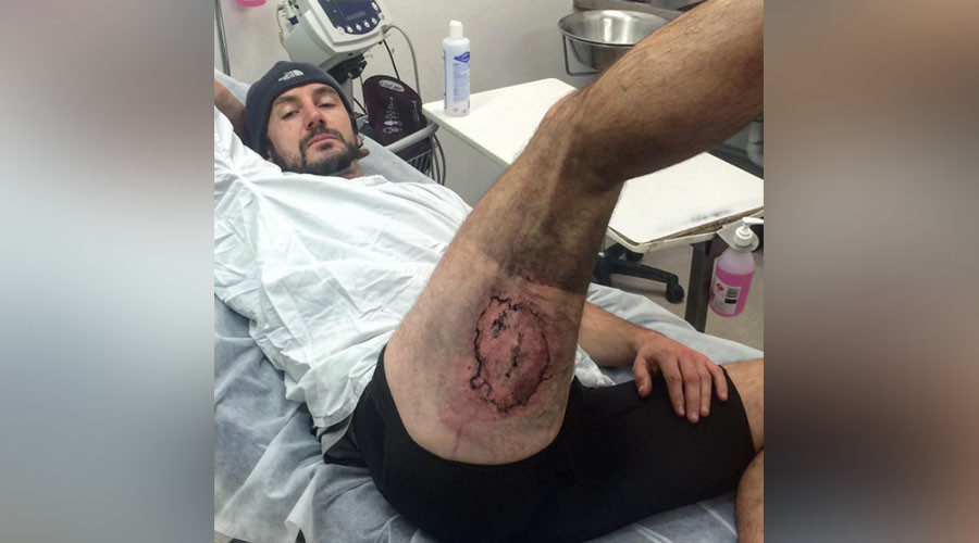 Burner phone: iPhone explodes on cyclist's leg after fall (PHOTOS)