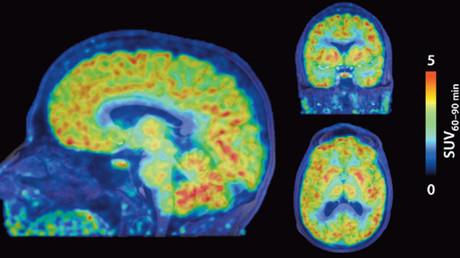 © Science Translational Medicine / stm.sciencemag.org