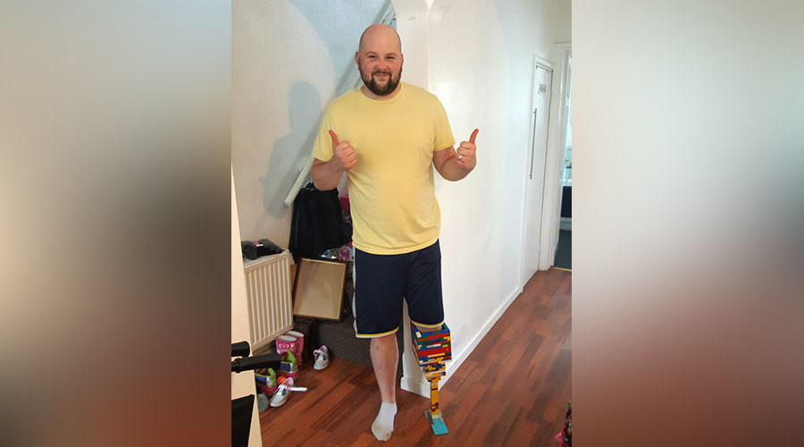 Amputee builds himself Lego leg while waiting for prosthetic limb