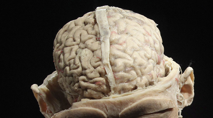 Science Museum gets a piece of visitors' minds after male/female brain comparison