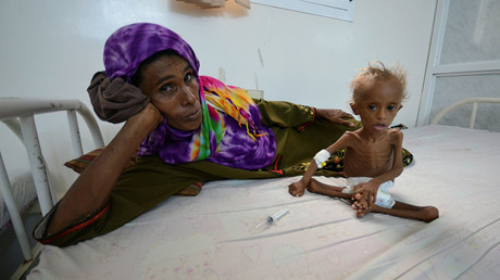 A woman rests on a bed next to her malnourished son at a hospital in the Red Sea port city of Houdieda, Yemen Setember 9, 2016. ©Abduljabbar Zeyad
