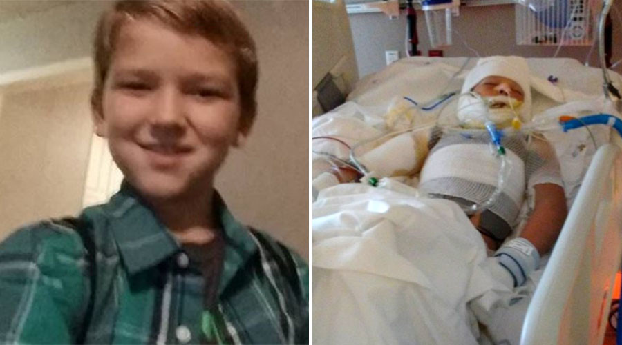 10yo boy with special needs in critical condition after being set on fire