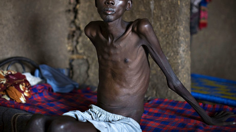 A patient with tuberculosis sits on a bed in