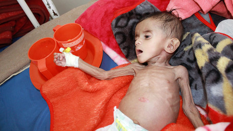 A malnourished child lies on a bed at a malnutrition treatment centre in the northwestern city of Saada, Yemen, November 13, 2016. © Naif Rahma