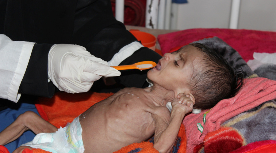 Yemenis 'slowly starving' to death as world 'turns blind eye' – aid charity