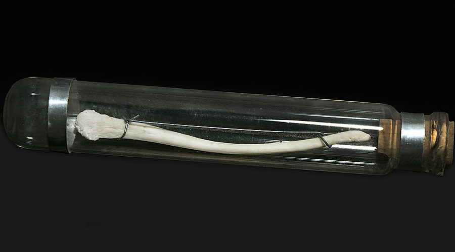 Human males lost penis bone because sex was too short, researchers say