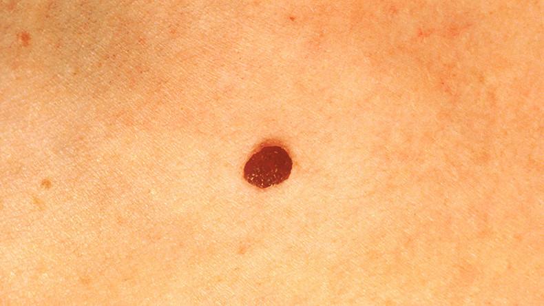 Early Skin Cancer Moles 'Eureka moment': A...