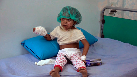 A malnourished child at a hospital in Yemen's Al Hudaydah province. © RT