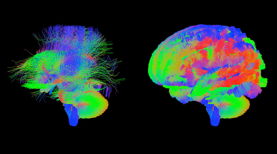 Mini mind maps: Unique scans to show babies' brains in womb as part of new project (PHOTOS)