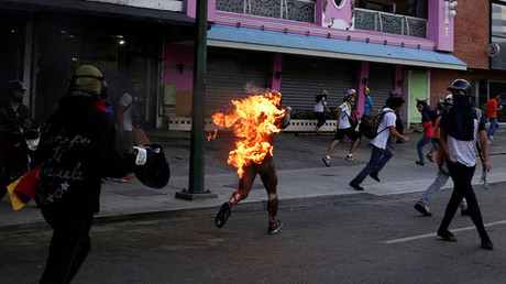 Beaten & torched: Protester describes violence at Venezuela riots