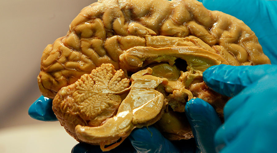 Pig cell implants could hold key to alleviating Parkinson's symptoms