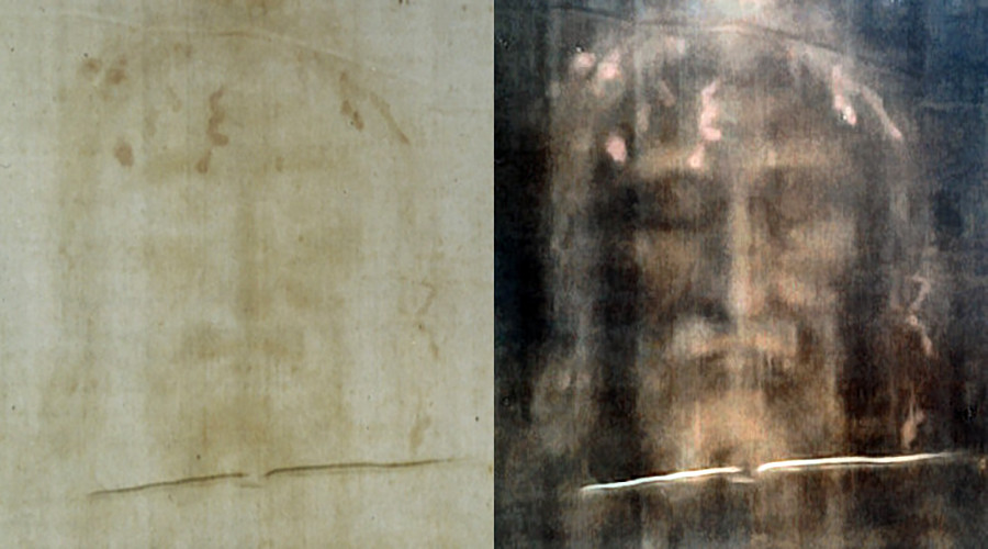 Turin Shroud is stained with the blood of a torture victim, new research reveals