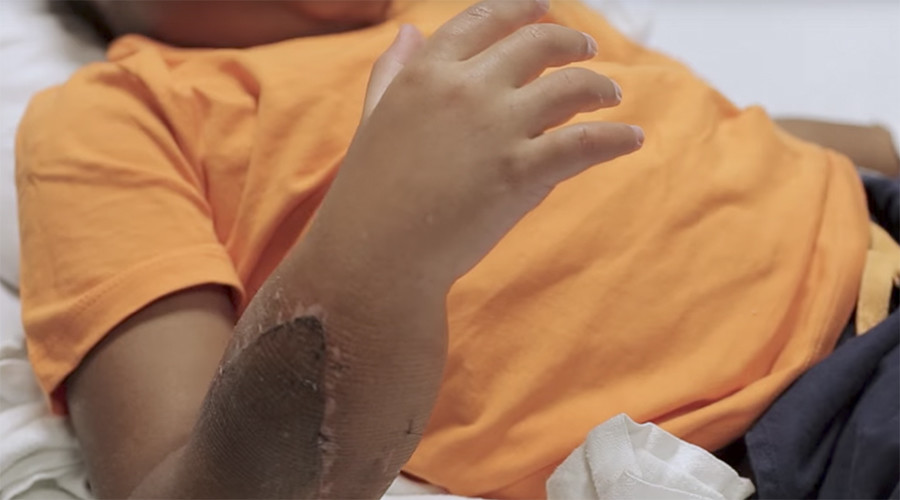 2 new hands transplanted onto child patient in world first surgery (VIDEOS)