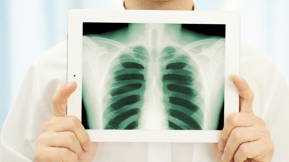 """El hombre tose """"escultura de sangre"""" perfectamente intacta de su pulmón (FOTO INTERMITENTE) - RT USA News"""