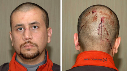 These February 17, 2012 photographs released to the media on May 17, 2012 by the Florida State's Attorney Office show neighborhood watch volunteer George Zimmerman, charged with second-degree murder in the February 26, 2012 shooting death of black teenager Trayvon Martin in Sanford, Florida. (AFP/State Attorney's Office)