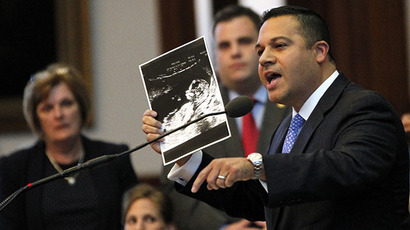 Texas State Representative Jason Villalba holds a sonogram of his thirteen-week-old son taken last week as he offers closing remarks during a meeting of the state legislature to consider legislation restricting abortion rights in Austin, Texas July 9, 2013. (Reuters / Mike Stone)