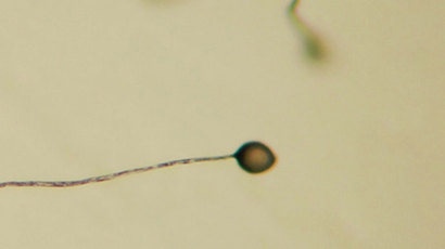 Dictyostelium Fruiting Bodies (Image from wiki.org)