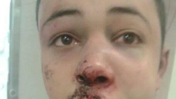 US 'profoundly troubled' by brutal beating of Palestine teen who turned out to be American