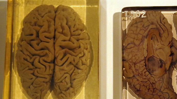Formaldehyde Brain Losing their minds: 10...