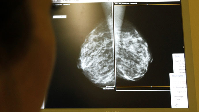 A doctor exams mammograms, a special type of X-ray of the breasts, which is used to detect tumours as part of a regular cancer prevention medical check-up (Reuters/Eric Gaillard)