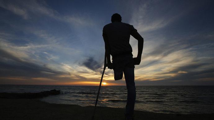 Florida man sues hospital after it threw away his leg in trash