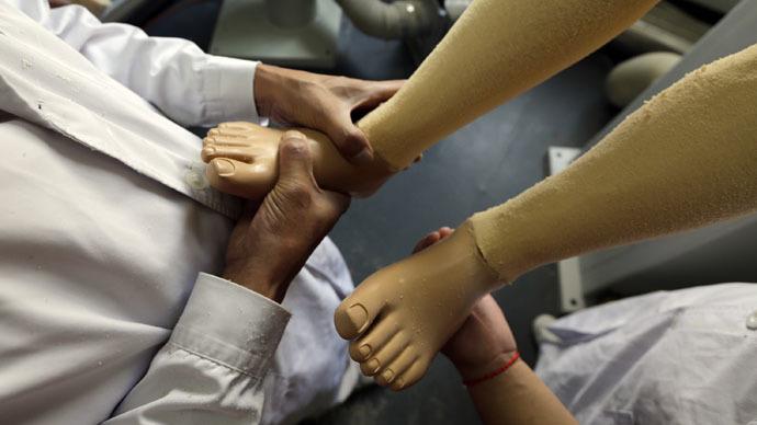 World's 1st 'feeling' prosthetic leg unveiled in Austria
