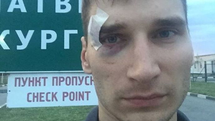 Russian journalist arrested, beaten, deported from rebel E. Ukraine