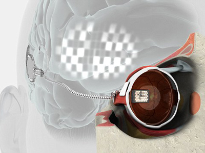 It's a miracle! World's first bionic eye gifts blind woman eyesight