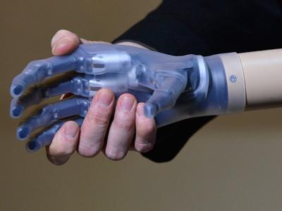 Touching breakthrough: Bionic hand to return sense of feeling
